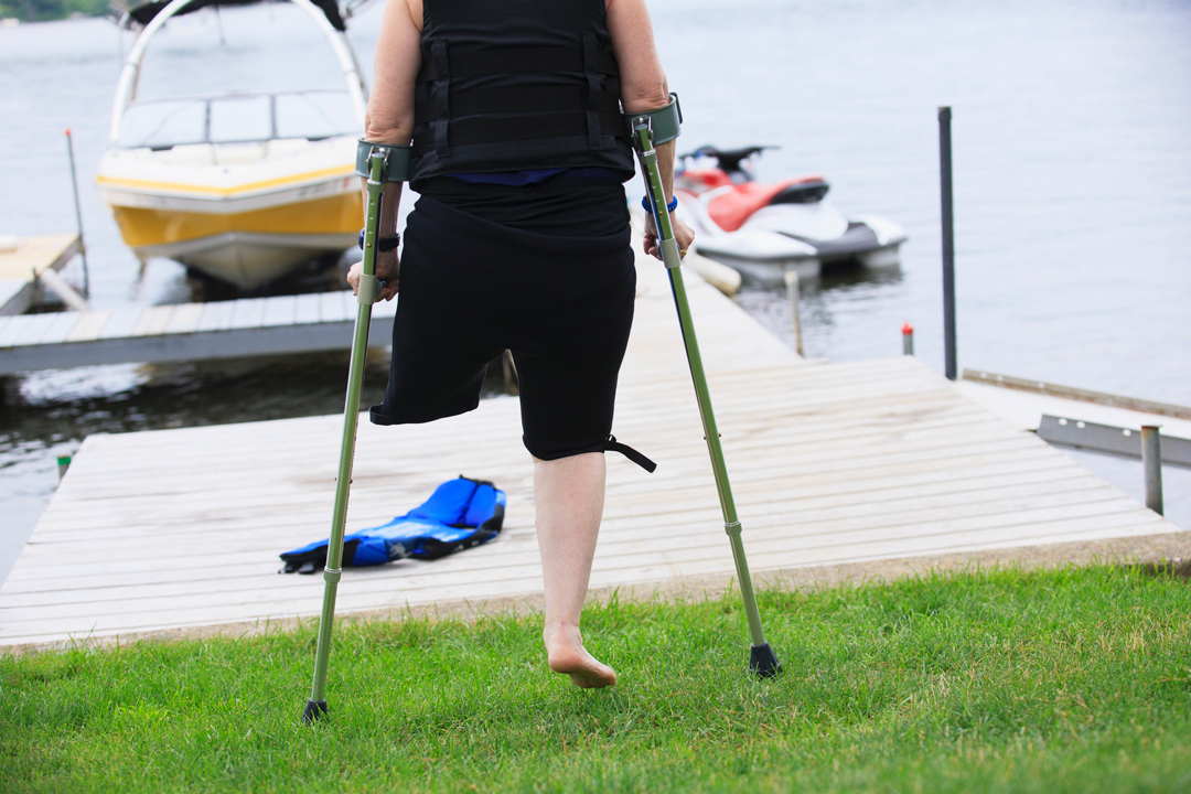 Woman with a missing leg and on crutches with a lake in the background
